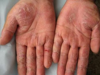 手部湿疹怎么治疗能去根图片