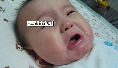婴儿湿疹应该怎么治疗图片