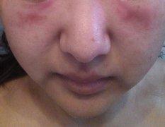 面部眼周过敏性湿疹图片