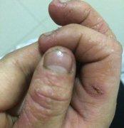 7岁小孩手部湿疹图片