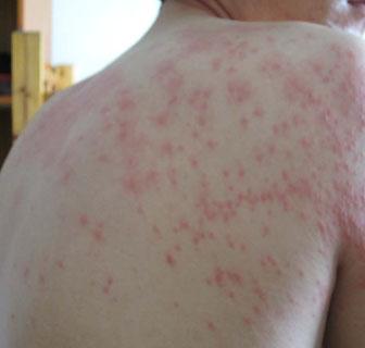 素敏_上半身丘疹性荨麻疹湿疹图片_身上湿疹图片_湿疹图片大全