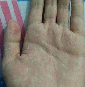 手热起皮发痒的手湿疹图片