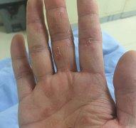 多手指上脱皮干燥的湿疹图片
