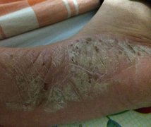 脚底干裂结痂的湿疹图片