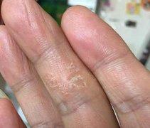 手指上局部干燥起皮的湿疹