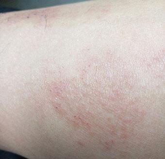 皲裂性湿疹症状_皮肤上的慢性湿疹图片_湿疹图片大全_湿疹图片大全