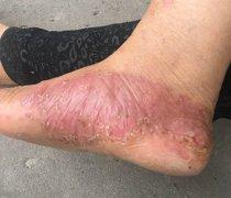 脚上激素性皮炎湿疹图片