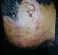 面部严重皮损瘙痒的湿疹图片