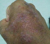 手上皮肤发红起疹的湿疹图片