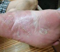 脚底极痒干燥脱皮的湿疹图片