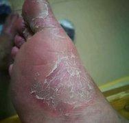 腿上角质化瘙痒的湿疹图片