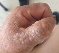 大拇指干燥增加样的湿疹图片