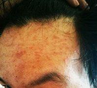 额头上起红疹瘙痒的湿疹图片
