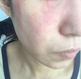 皲裂性湿疹症状_面部激素皮炎性的过敏性湿疹图片_面部湿疹图片_湿疹图片大全