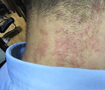皲裂性湿疹症状_后颈子上红疹样的湿疹图片_身上湿疹图片_湿疹图片大全