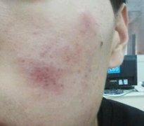 脸上的一小块湿疹图片