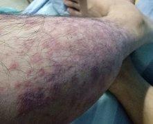 湿热重并下注于脚的湿疹图片