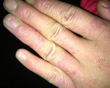 手上脱皮发红,夜间瘙痒的湿疹图片