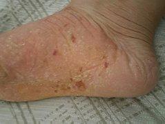 脚底皮肤粗糙干裂的皮炎湿疹图片
