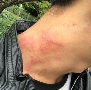 脖子上发作的过敏性湿疹图片