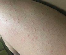 身上起的多个丘疹样的湿疹图片