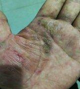 手上皲裂伴有出血瘙痒的湿疹图片