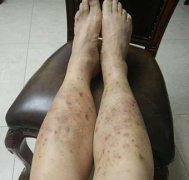 静脉曲张导致的双下肢湿疹图片