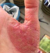 掌跎性脓泡疹导致的手湿疹图片