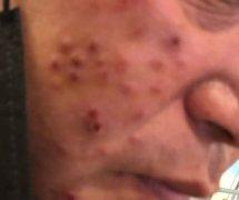 面部结节性痒疹样的湿疹图片