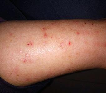 皲裂性湿疹症状_手臂上起的多个小红点湿疹图片_湿疹图片大全_湿疹图片大全