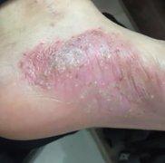 脚底起内侧起水泡瘙痒的湿疹图片