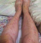 双腿大面积起红疹的湿疹图片