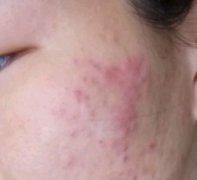 面颊部起的隆起过敏样湿疹图片