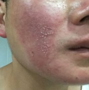 面部角质损伤干燥的湿疹图片