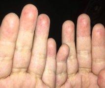 手指头皮肤薄出红血丝样的手湿疹图片
