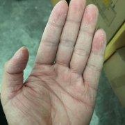 手上皮肤发枯脱皮的湿疹图片