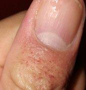 拇指背上出水泡样的湿疹图片