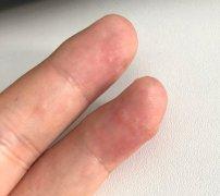 手指头上起的泡疹样的手湿疹图片
