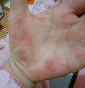 手掌发红血热性的手湿疹图片