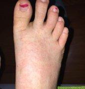 湿热体质患者脚上起的湿疹图片