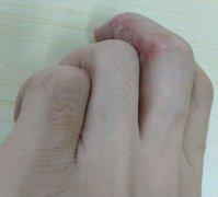 手指侧边起水泡瘙痒的湿疹图片