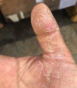 大拇指皮肤极干燥开裂的湿疹图片