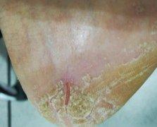 脚后跟开裂增厚的皲裂性湿疹