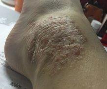 脚上起的一大块皮炎湿疹图片