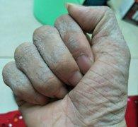 起干皮脱屑的手湿疹图片