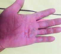 被过度用激素导致的手湿疹图片