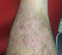 腿上起的一块干燥性皮炎湿疹图片