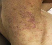 颈脖子上起的一块干性湿疹图片
