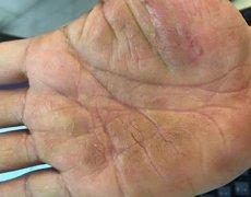 手掌心皮肤干燥开裂的手湿疹图片