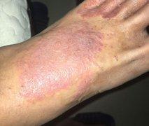 脚背上起的大片瘙痒湿疹图片
